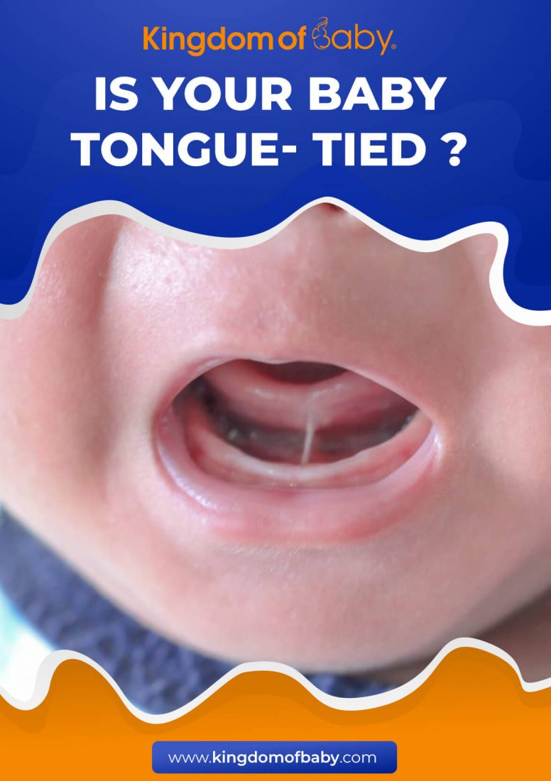 Is Your Baby Tongue-Tied? Find Out How to Deal with it While Breastfeeding