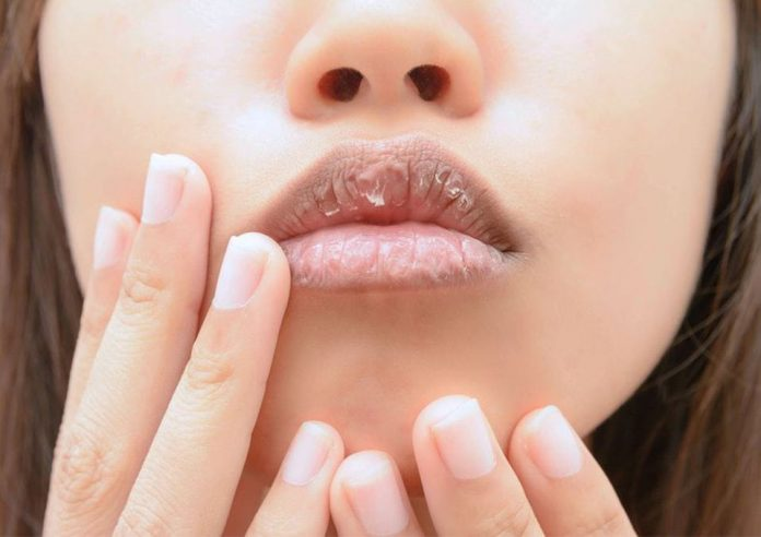 The Dry Lips During Pregnancy