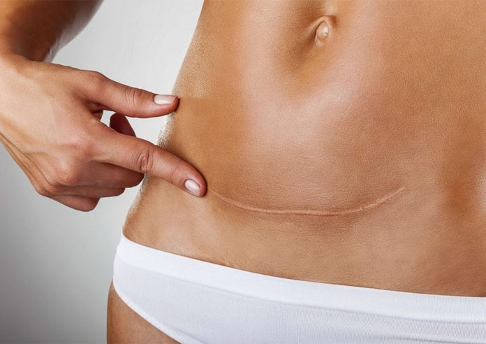 The Pregnancy After The Hysterectomy