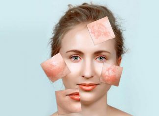 Simple Tips In Getting Rid of Pregnancy Mask