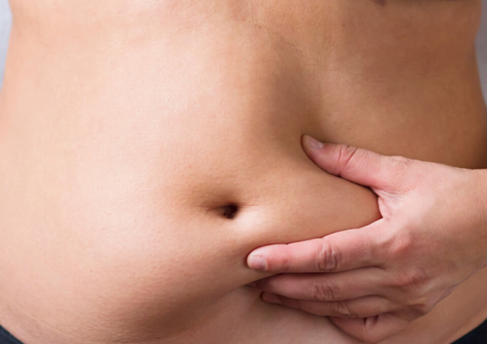 Stomach Pouch And How To Lose It During And After Pregnancy