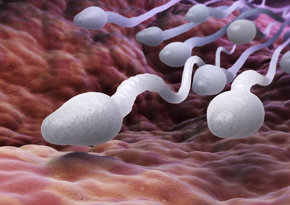 What Is sperm or semen allergy?