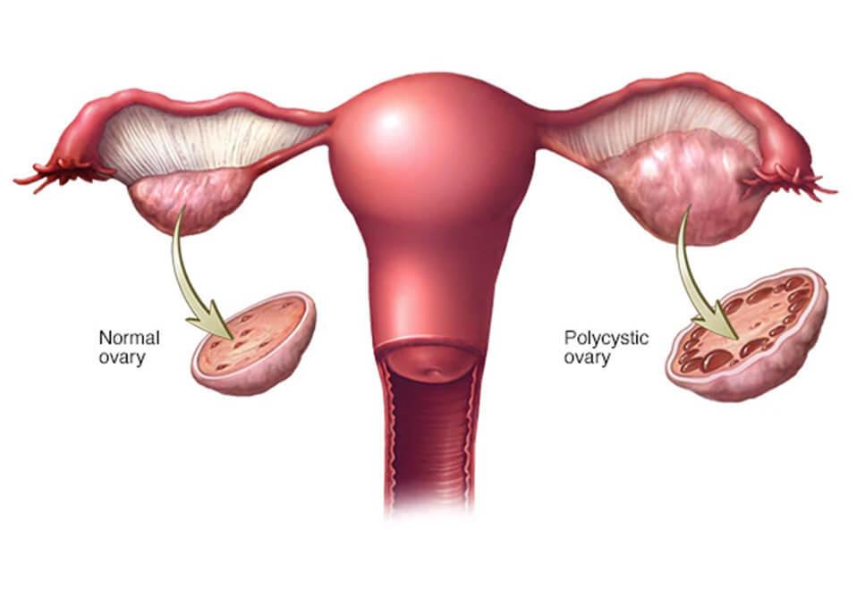 Uterus and pregnancy