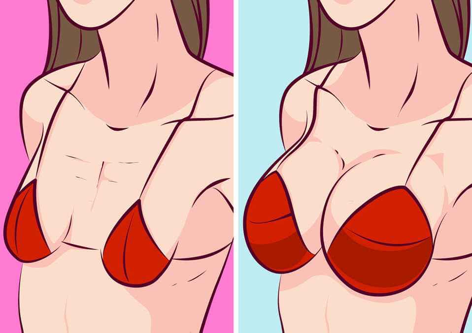 Saggy Breasts: Why Breasts Tend to Droop After Breastfeeding and How to Prevent It?